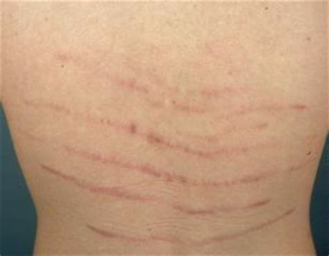 viruses causing stretch marks picture 1