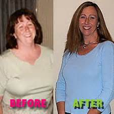 cortisol and weight gain with increase in breast picture 1