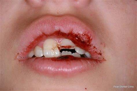children and trauma to teeth picture 5