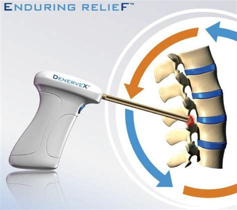 chronic back pain relief picture 2