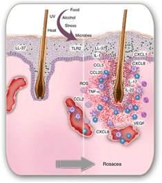 rosacea drugs picture 5