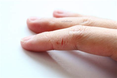cracked skin on hands picture 1