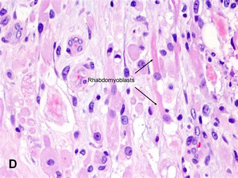 rhabdomyosarcoma of the bladder picture 19