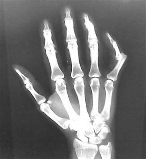 dislocation of a joint picture 3