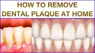 stripes to remove dental plaque picture 2