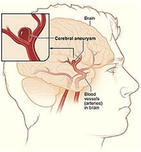Aneurysm warning bleed blood pressure 80 50 picture 3