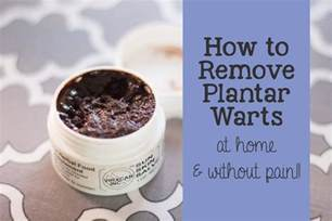how to treat plantus warts picture 1