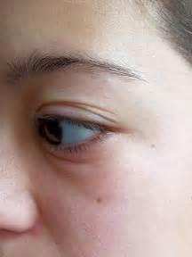 allergy in skin around eyes picture 11