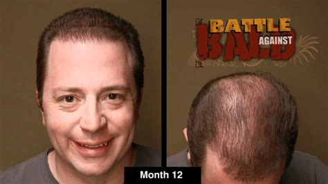 boslely hair restoration picture 7