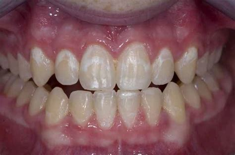 can weak spots in teeth be fixed picture 6