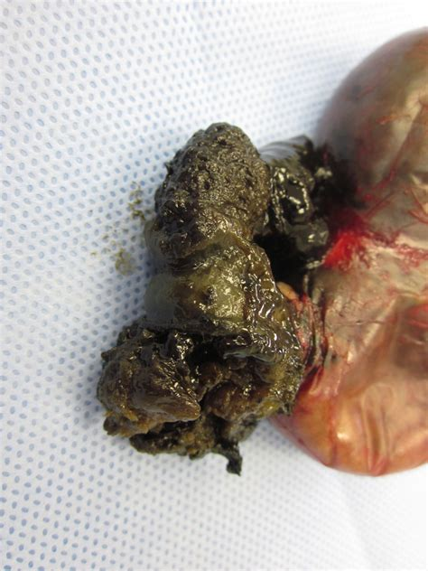 dr thinks i have gallbladder disease but mo picture 11