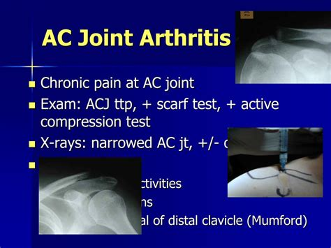 arthritis and ac joint picture 11