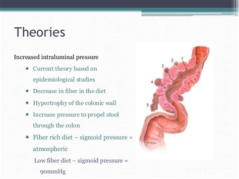 diet for diverticulosis picture 3