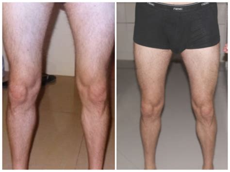mammorex for male before and after pictures picture 2