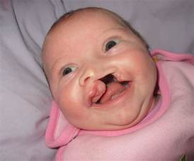 cleft lip cleft palate picture 2
