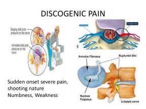 joint pain in the morning picture 6