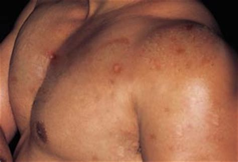 body acne picture 9