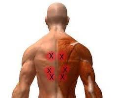 extreme muscle stiffness picture 7