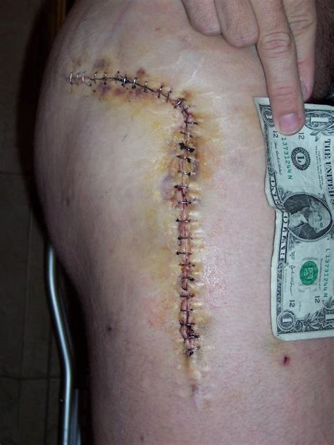 hip replacement skin scar tissue picture 1