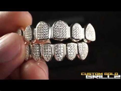 custom silver teeth picture 13