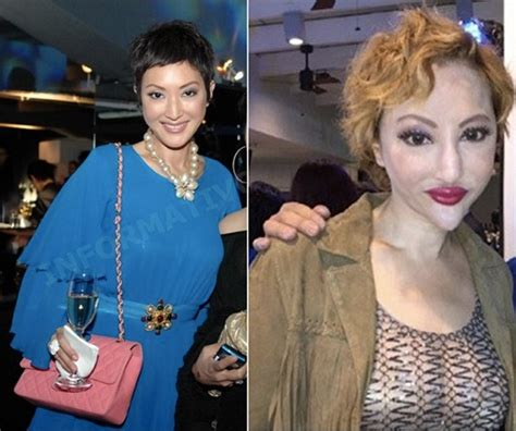 women aging plastic surgery hong kong picture 11