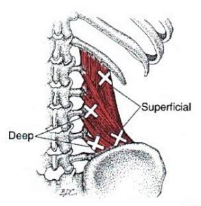 driver muscle pain picture 5