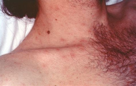 skin lesions of hiv positive patients picture 6