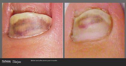 foot laser fungus denver picture 1
