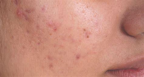 acne boils picture 3