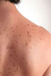 discoloration of skin picture 14