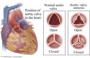 erectile dysfunction and aortic heart valve picture 15