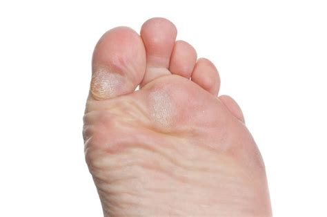 skin under toe picture 10