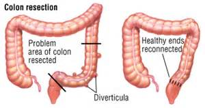 high fiber diet for diverticulosis picture 6