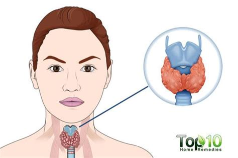 can people with hashimotos take thyromine picture 4