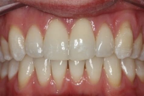 clear teeth picture 3