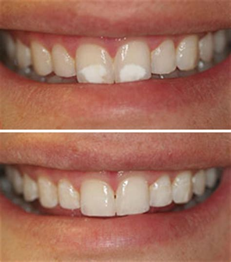 new jersey teeth whitening picture 3