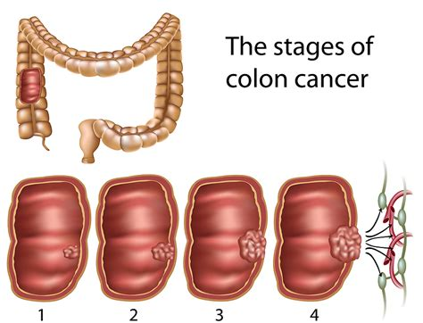 intestinal cancer stage 4 picture 5