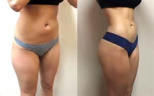 breast augmentation surgery dallas picture 6