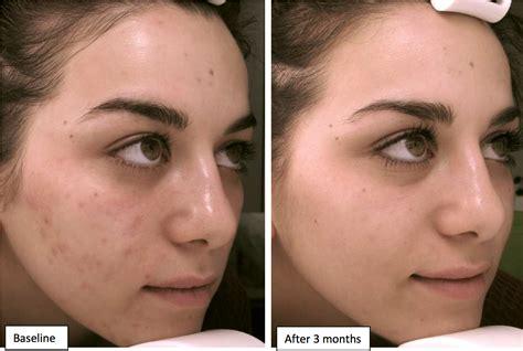 vicks vapor rub cystic acne picture 15