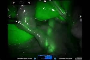 bladder procedures picture 7