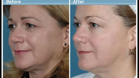 aging anti wrinkle cream picture 7