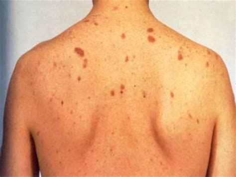 viral hepais skin picture 14