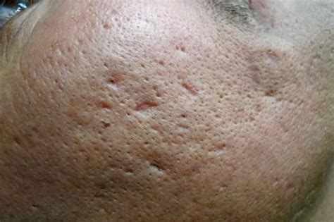 icepick acne scars picture 1