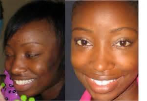 laser hair removal in atlanta picture 11