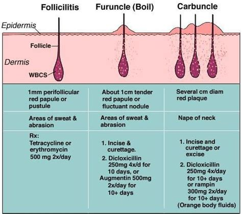 treatment of boils picture 13