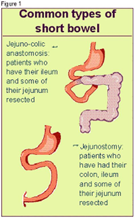 small bowel disease picture 15