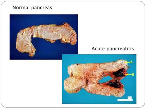 inflammation picture 6