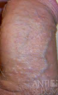 rough spots on penis picture 1