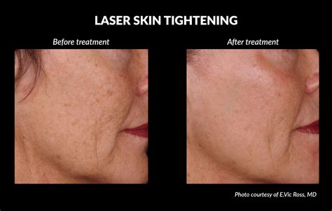 an skin tightening laser nj picture 5