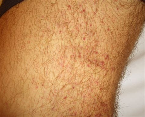 rashes hives picture 7